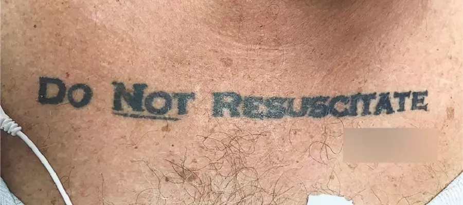 Do Not Resuscitate tattoos – What would you do?